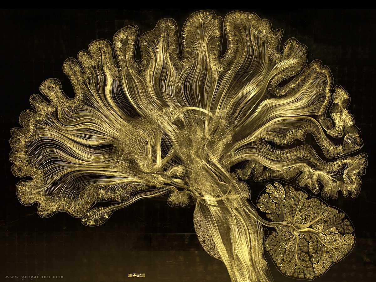 Gold Leaf Prints of the Human Brain by Greg Dunn